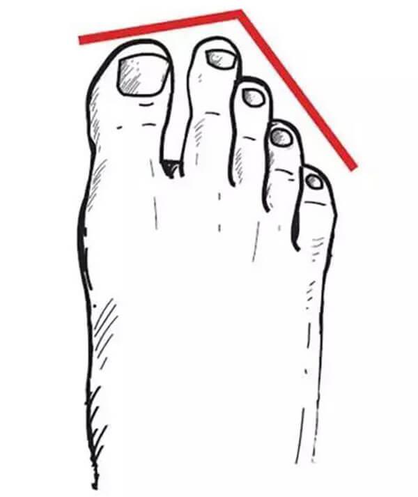 Bàn chân Hy Lạp