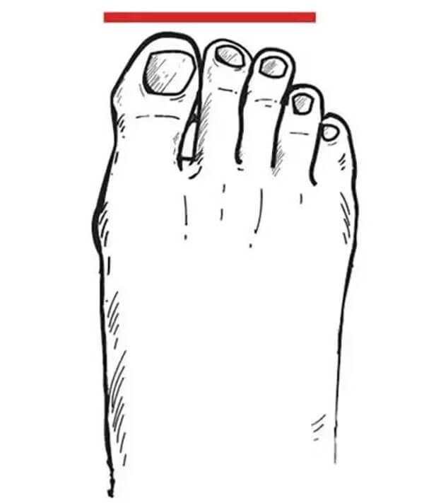 Bàn chân La Mã